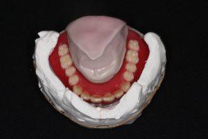 入れ歯の画像(上)
