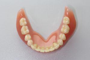入れ歯の画像(下)