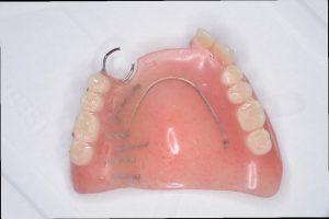 不安定な入れ歯の画像