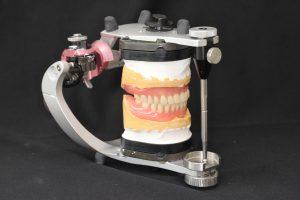 総入れ歯の画像